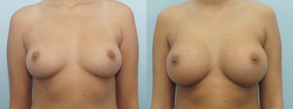 BREAST AUGMENTATION PATIENT 47