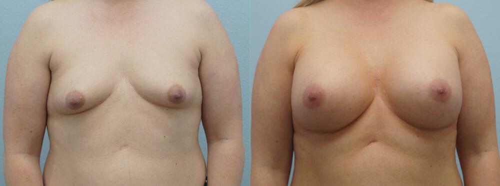 BREAST AUGMENTATION PATIENT 24