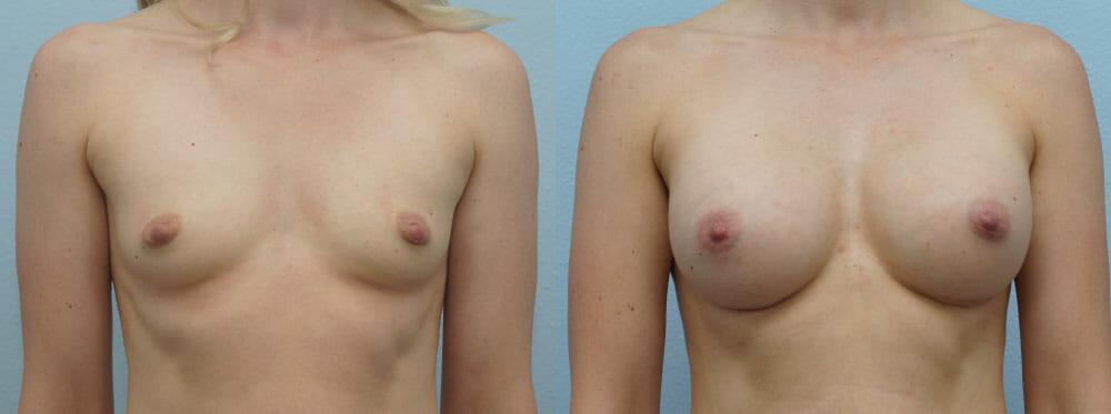 BREAST AUGMENTATION PATIENT 53