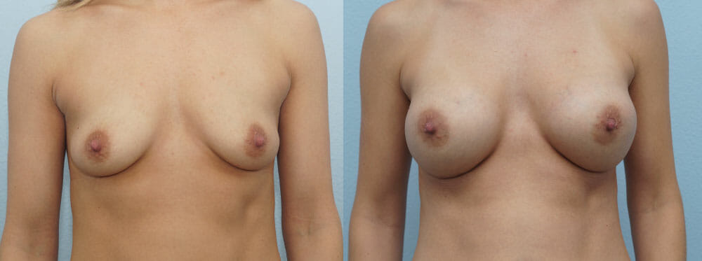 BREAST AUGMENTATION PATIENT 50