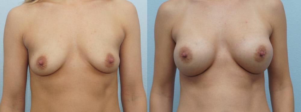 BREAST AUGMENTATION PATIENT 50
