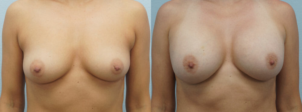 BREAST AUGMENTATION PATIENT 51