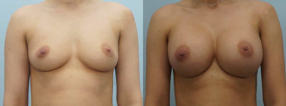 BREAST AUGMENTATION PATIENT 52