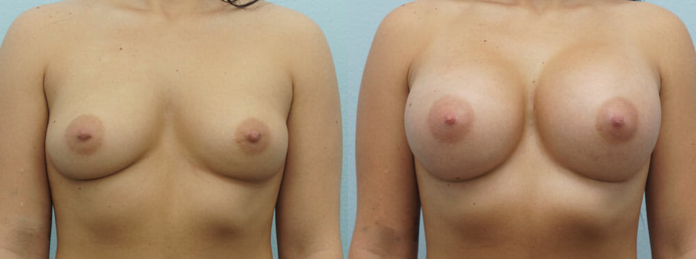 BREAST AUGMENTATION PATIENT 54
