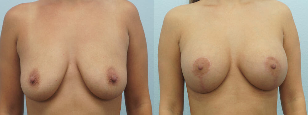 BREAST LIFT WITH IMPLANTS PATIENT 21