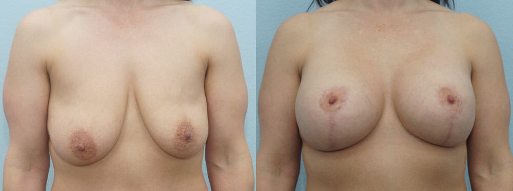 BREAST LIFT WITH IMPLANTS PATIENT 22