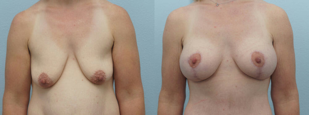 BREAST LIFT WITH IMPLANTS PATIENT 24