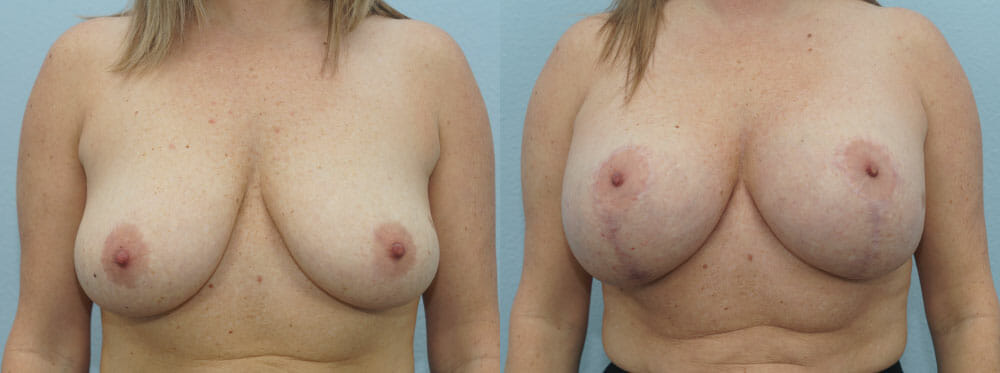 BREAST LIFT WITH IMPLANTS PATIENT 17