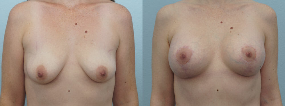 BREAST LIFT WITH IMPLANTS PATIENT 20