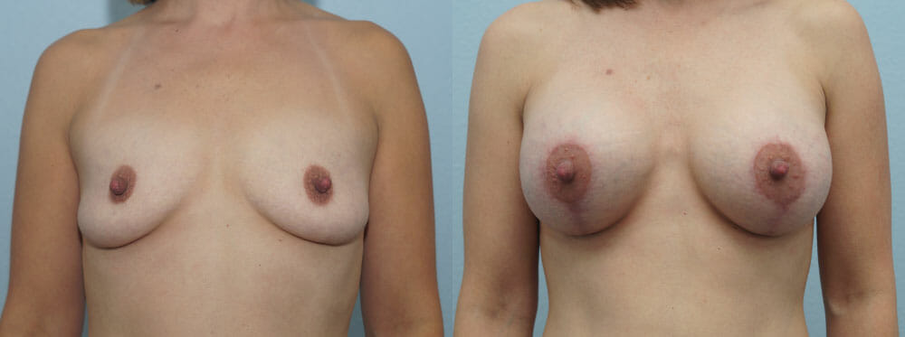 BREAST LIFT WITH IMPLANTS PATIENT 25