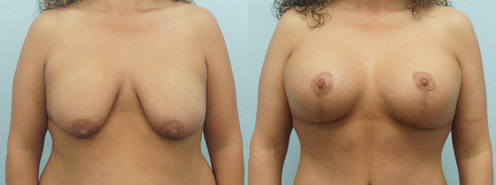 BREAST LIFT WITH IMPLANTS PATIENT 26