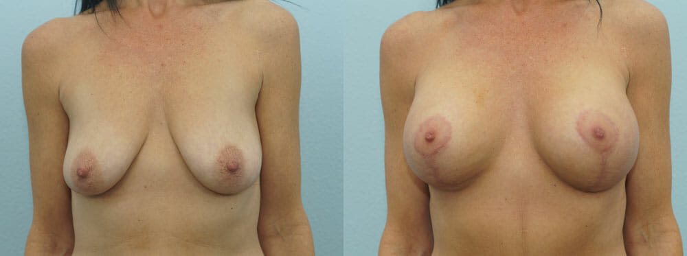 BREAST LIFT WITH IMPLANTS PATIENT 27