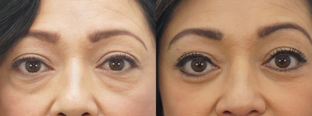 EYELID SURGERY (BLEPHAROPLASTY) PATIENT 12