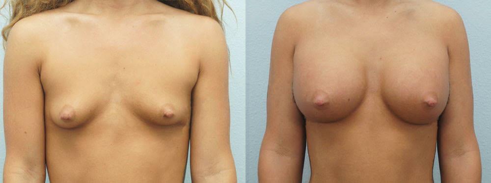 BREAST AUGMENTATION PATIENT 25