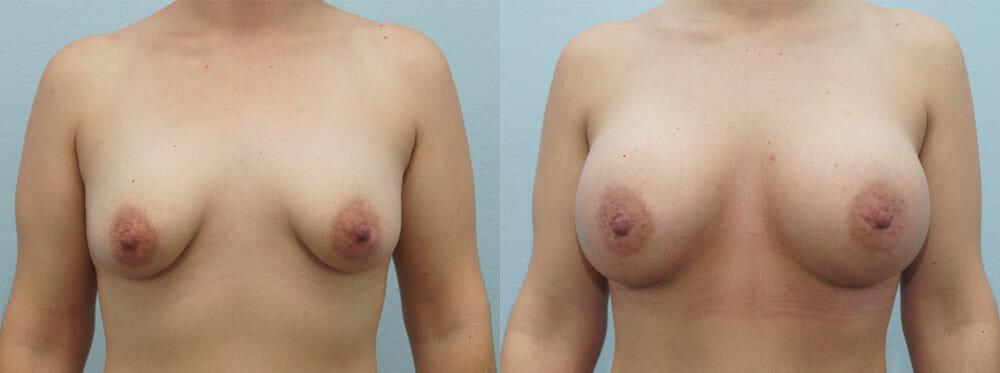 BREAST AUGMENTATION PATIENT 26