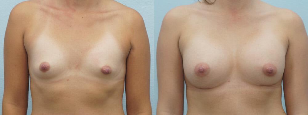 BREAST AUGMENTATION PATIENT 32