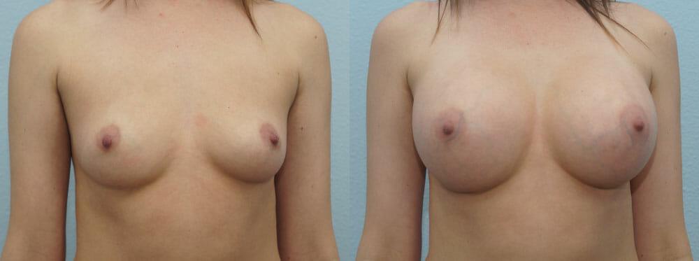 BREAST AUGMENTATION PATIENT 35