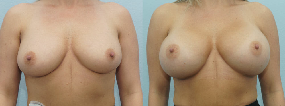 BREAST AUGMENTATION PATIENT 36