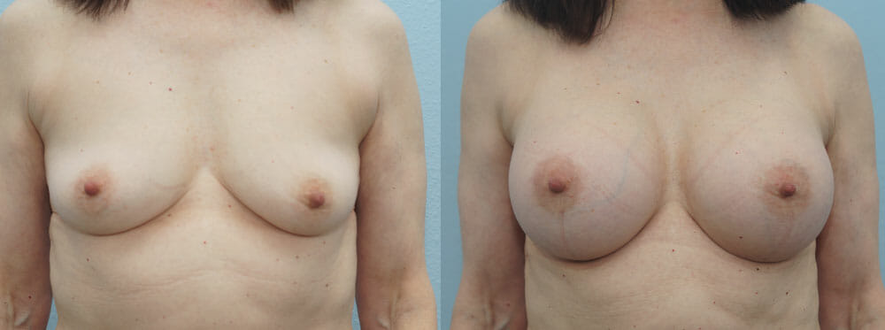 BREAST AUGMENTATION PATIENT 37