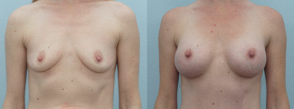 BREAST AUGMENTATION PATIENT 38