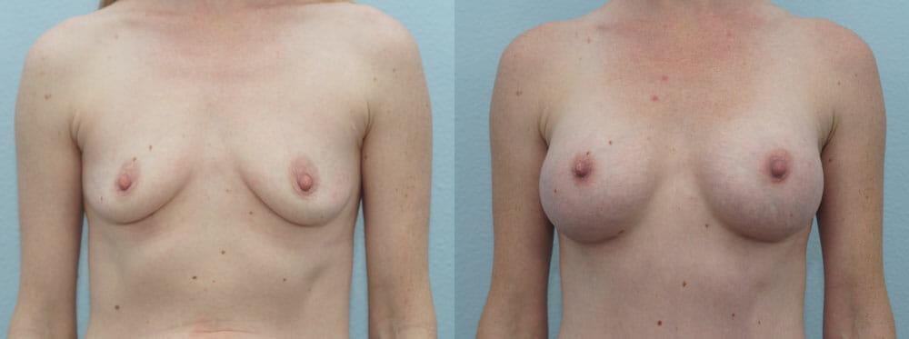 BREAST AUGMENTATION PATIENT 38