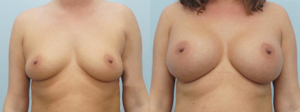BREAST AUGMENTATION PATIENT 39