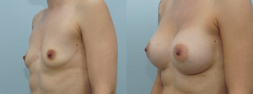 BREAST AUGMENTATION PATIENT 40