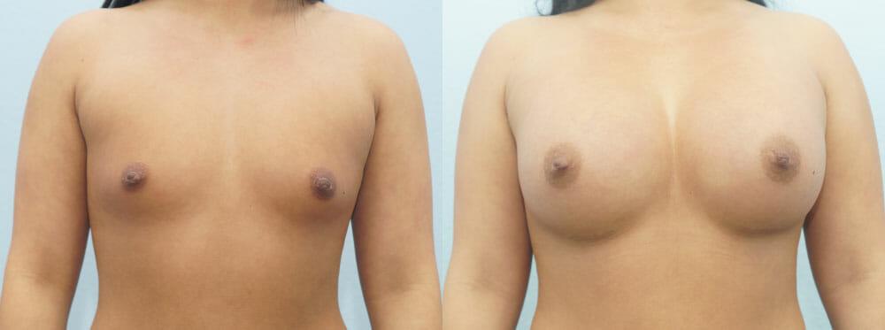 BREAST AUGMENTATION PATIENT 41