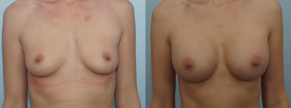 BREAST AUGMENTATION PATIENT 42