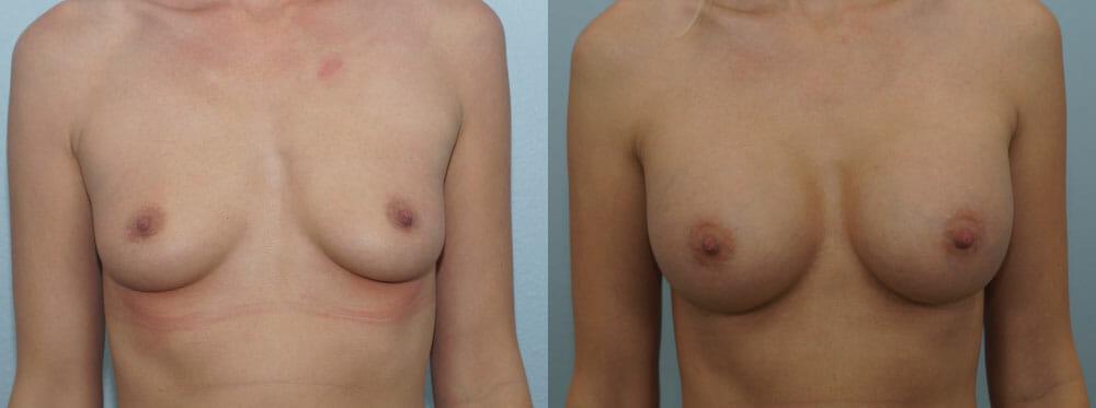 BREAST AUGMENTATION PATIENT 42