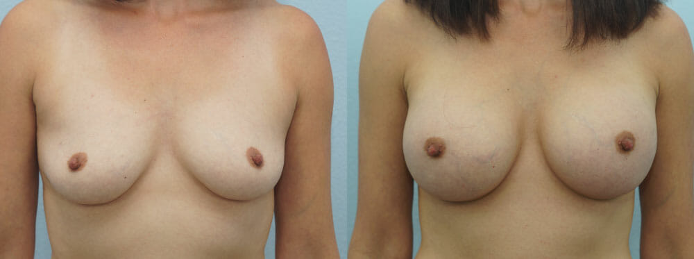 BREAST AUGMENTATION PATIENT 43