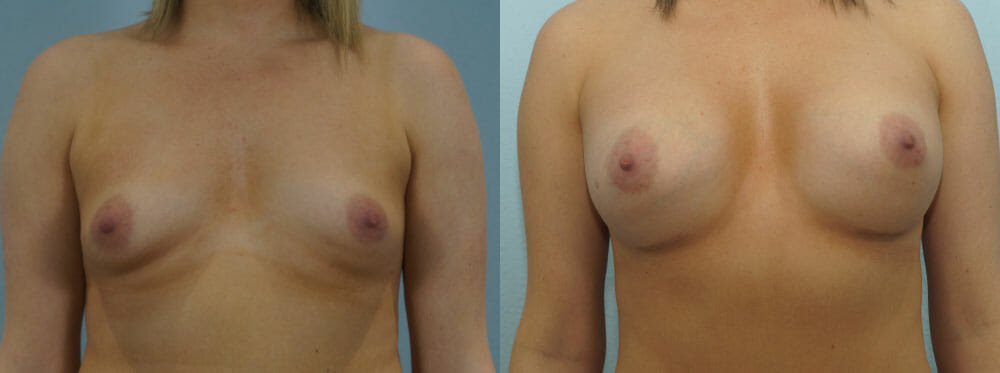 BREAST AUGMENTATION PATIENT 44