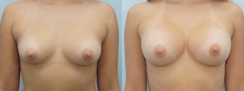 BREAST AUGMENTATION PATIENT 29
