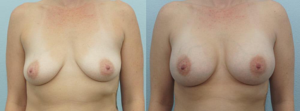 BREAST AUGMENTATION PATIENT 45