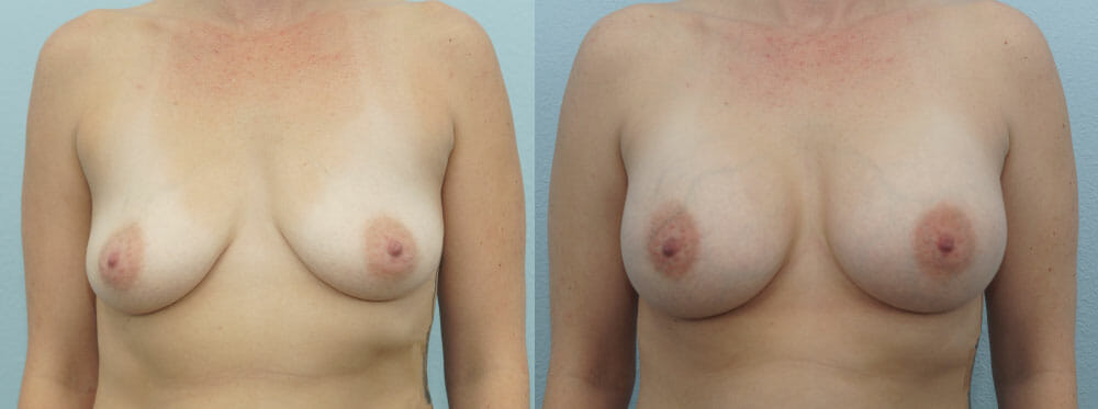 BREAST AUGMENTATION PATIENT 45