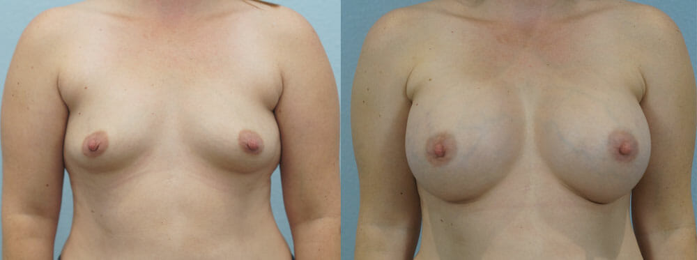 BREAST AUGMENTATION PATIENT 27
