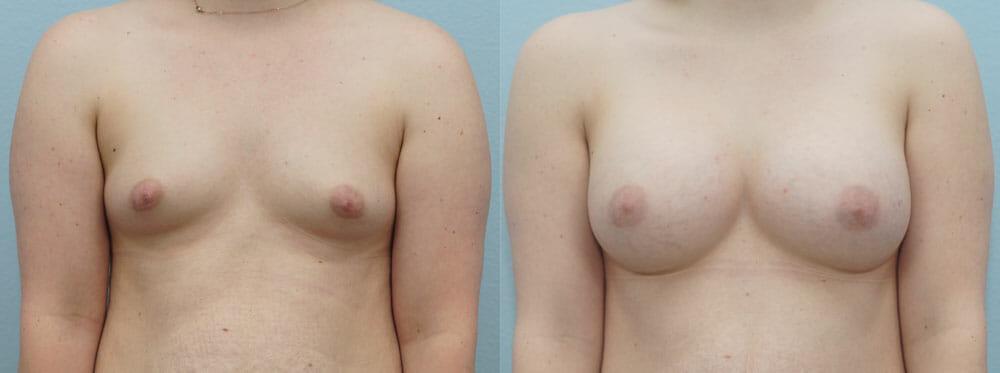 BREAST AUGMENTATION PATIENT 28