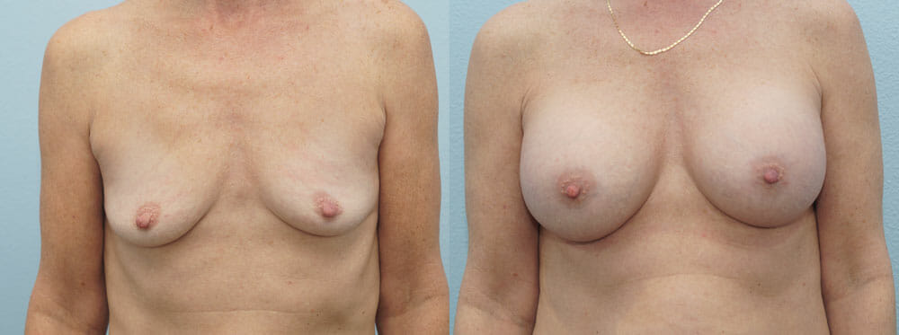 BREAST AUGMENTATION PATIENT 30