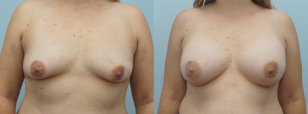 BREAST AUGMENTATION PATIENT 31
