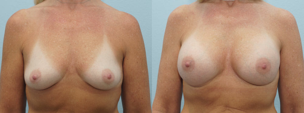BREAST AUGMENTATION PATIENT 33