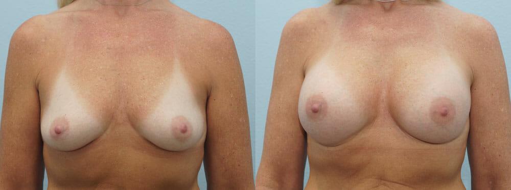 BREAST AUGMENTATION PATIENT 33