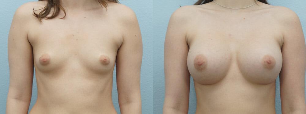 BREAST AUGMENTATION PATIENT 15