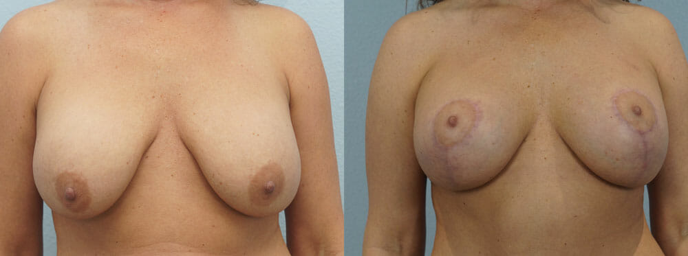 BREAST LIFT WITH IMPLANTS PATIENT 14