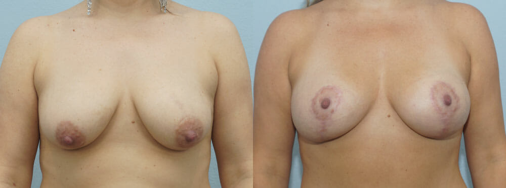 BREAST LIFT WITH IMPLANTS PATIENT 19