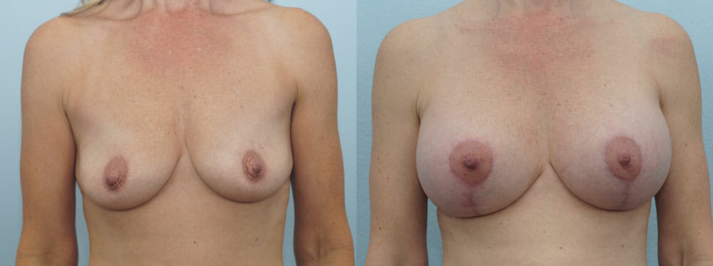 BREAST LIFT WITH IMPLANTS PATIENT 23