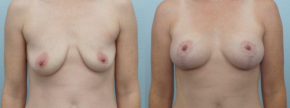 BREAST LIFT WITH IMPLANTS PATIENT 15