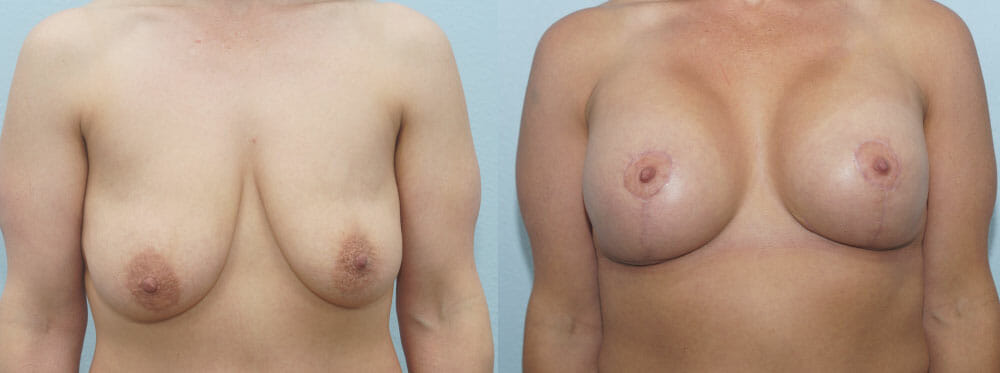 BREAST LIFT WITH IMPLANTS PATIENT 16