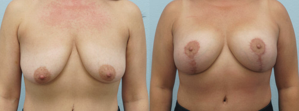 BREAST LIFT WITH IMPLANTS PATIENT 18