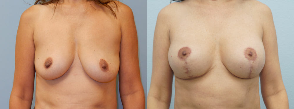 BREAST LIFT WITH IMPLANTS PATIENT 1