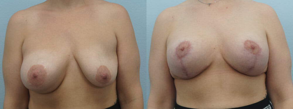 BREAST REVISION PATIENT 12